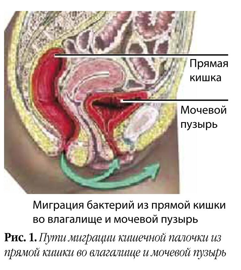 kak-lechit-kishechnuyu-palochku-vo-vlagalishe