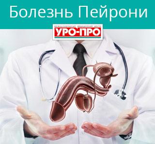 Препарат силуэт для лечения эндометриоза отзывы